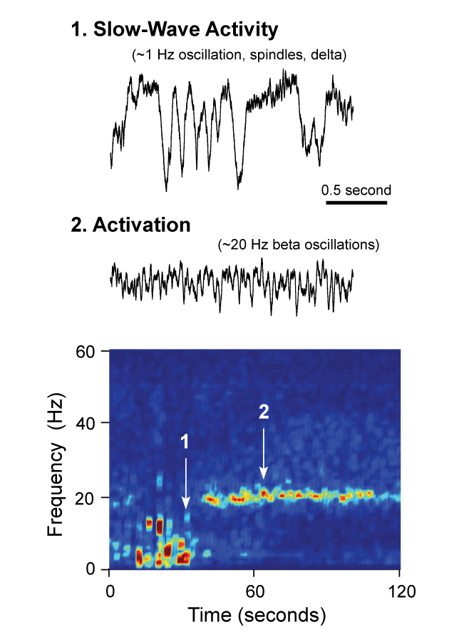 'Bad' brain waves in Parkinsonism.