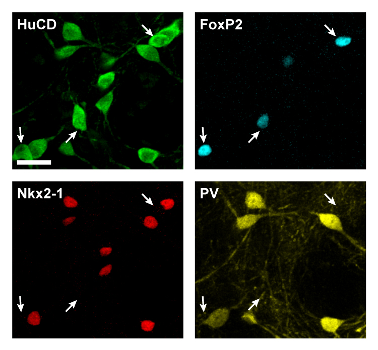 The molecular building blocks of cellular diversity in the external globus pallidus: All types of GPe neuron are revealed with immunoreactivity for HuCD (green). Arkypallidal neurons are revealed with FoxP2 (light blue), whereas prototypic GPe neurons express Nkx2-1 (red) and often PV (yellow).