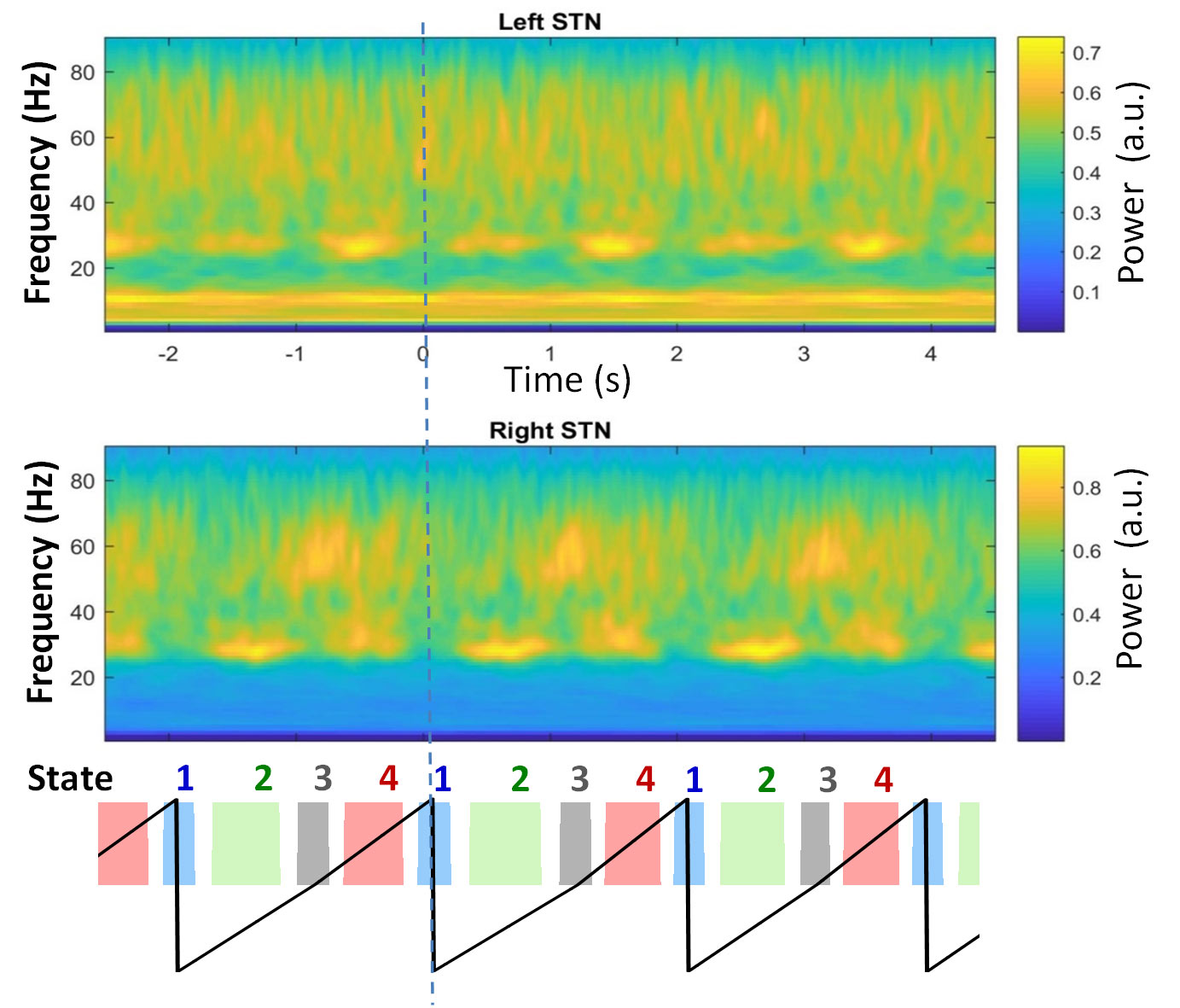 Brain signals recorded from the two subthalmic nuclei varying with the different phases of walking, shown as colour coded below.