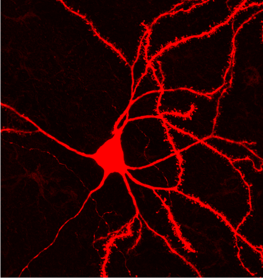 A foundation for striatal function: a spiny projection neuron.