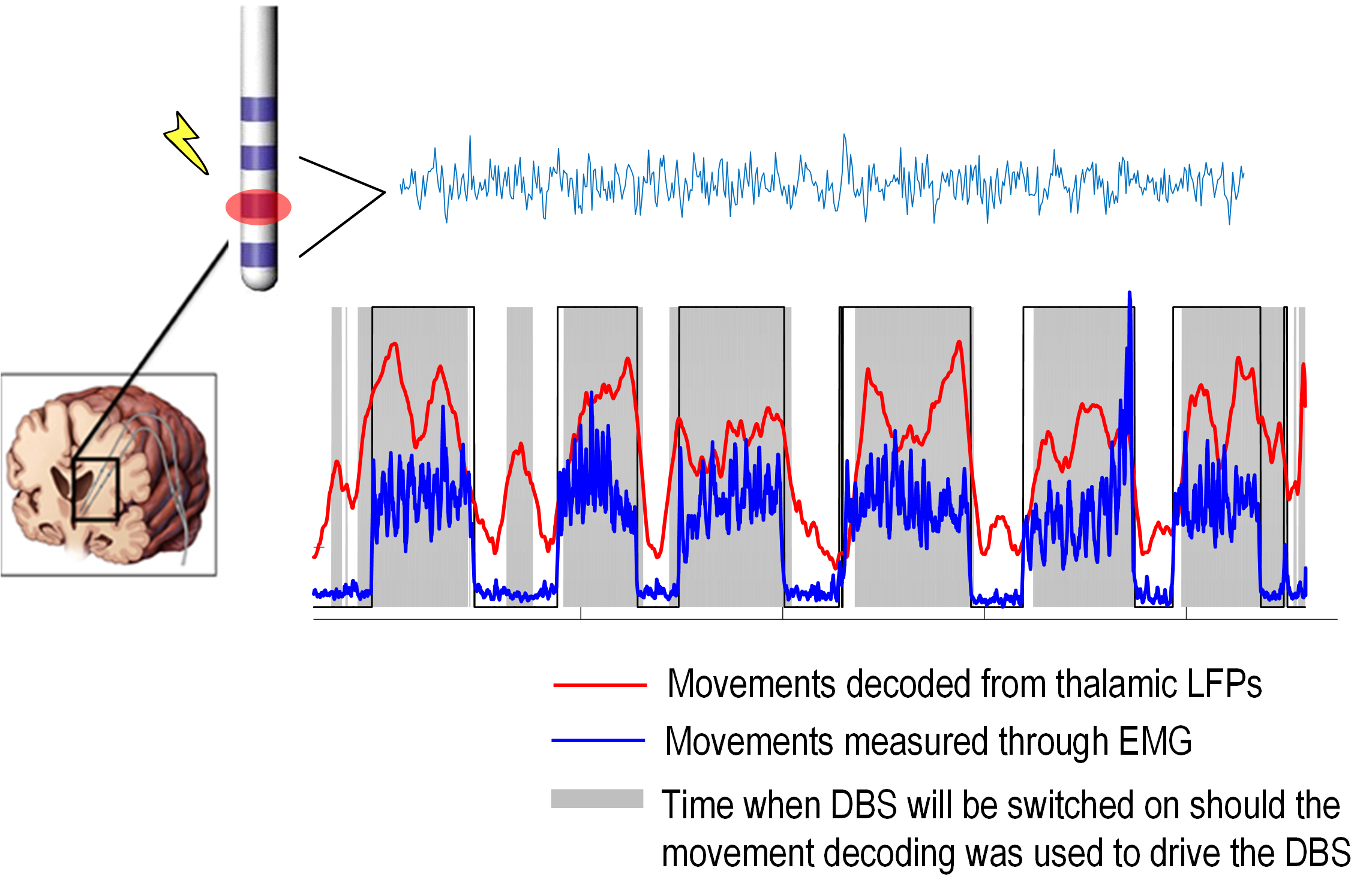 Local field potentials (LFPs) recorded from an electrode implanted in motor thalamus for therapeutic stimulation was used to identify whether the patient is making a voluntary movement or not. This matches very well the movements measured through muscle activities