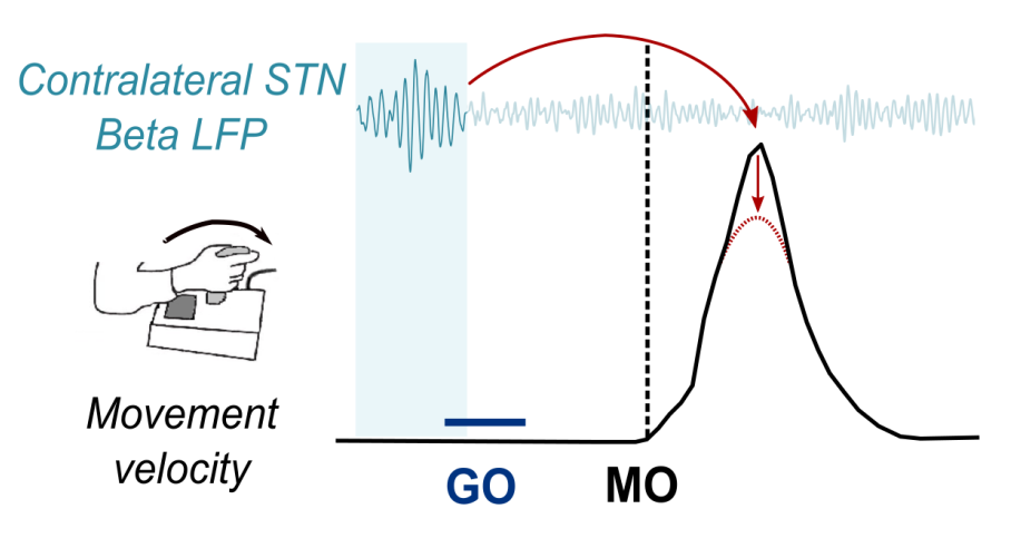 Bursts of beta activity (beta LFP) in the subthalamic nucleus (STN) approximately half a second before the movement onset (MO) are associated with the lower speeds (velocity; red arrows) of the forthcoming reaching movements.