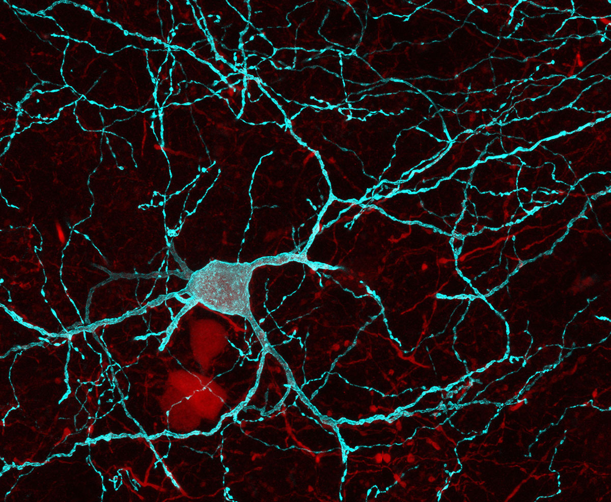 A picture of parvalbumin interneurons of the nucleus accumbens