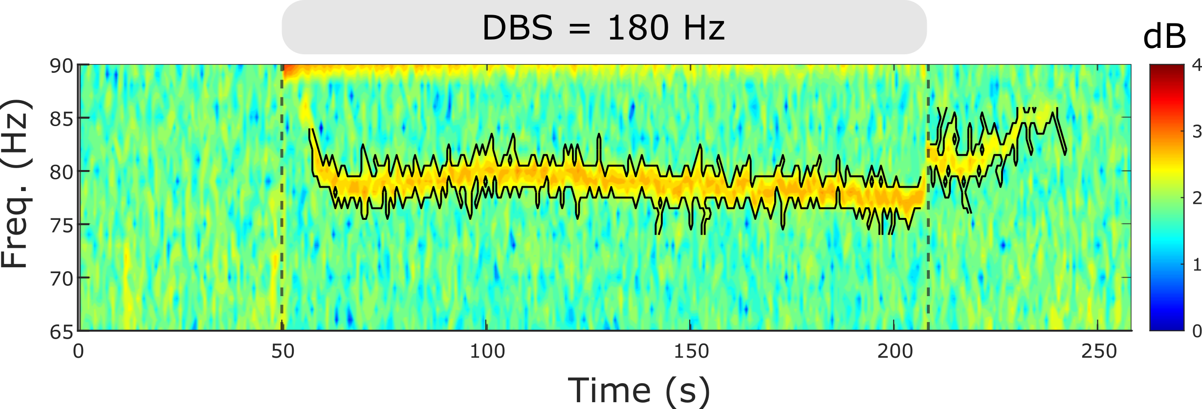 Spectrogram of nerve cell activity recorded in human brain.