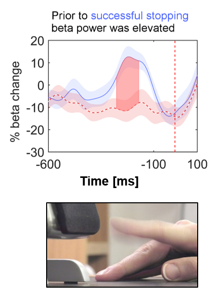 The stop signal (red vertical line) instructed the participant to interrupt the upcoming finger tap. When beta activity in the brain was relatively high, stopping was more successful.