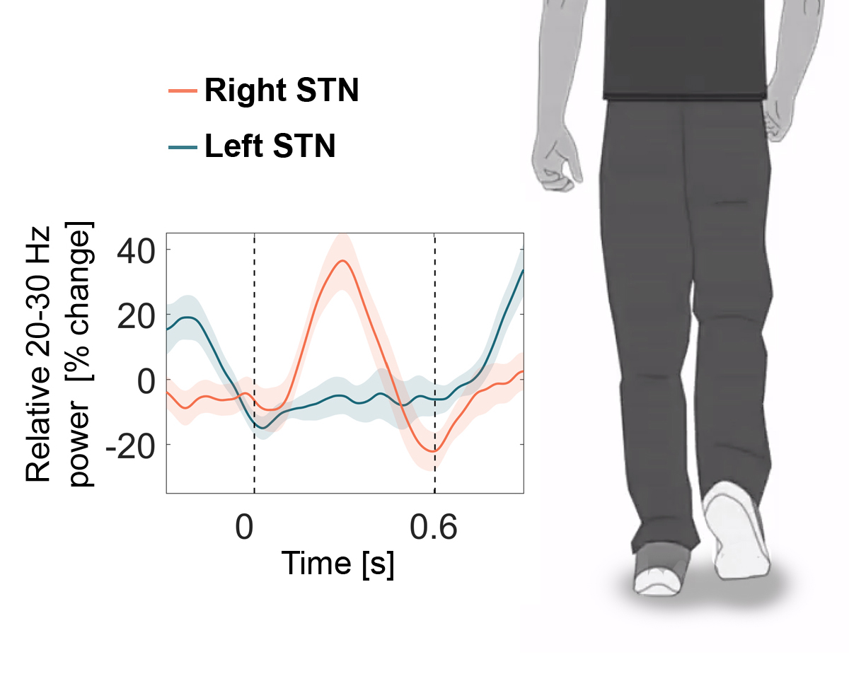 People with Parkinson's stepped in place along with a cartoon man in a video (a screenshot of the video is displayed to the right). Brain activity was recorded from the subthalamic nucleus (STN) and showed that electrical waves occurring at 20-30 times per second (Hz) – so called 'beta activity' - alternated between the left and right STN (blue and red line) with the stepping movement.