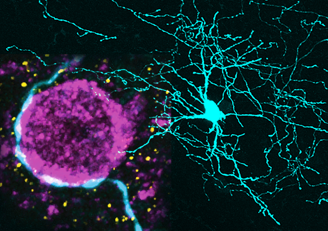 Left side: High-magnification image of the axon of a single striatal interneuron (light blue) that is making presumed synaptic connections with the cell body of a projection neuron (purple). Right side: Lower-magnification image of a striatal interneuron that was recorded and labelled in vivo.