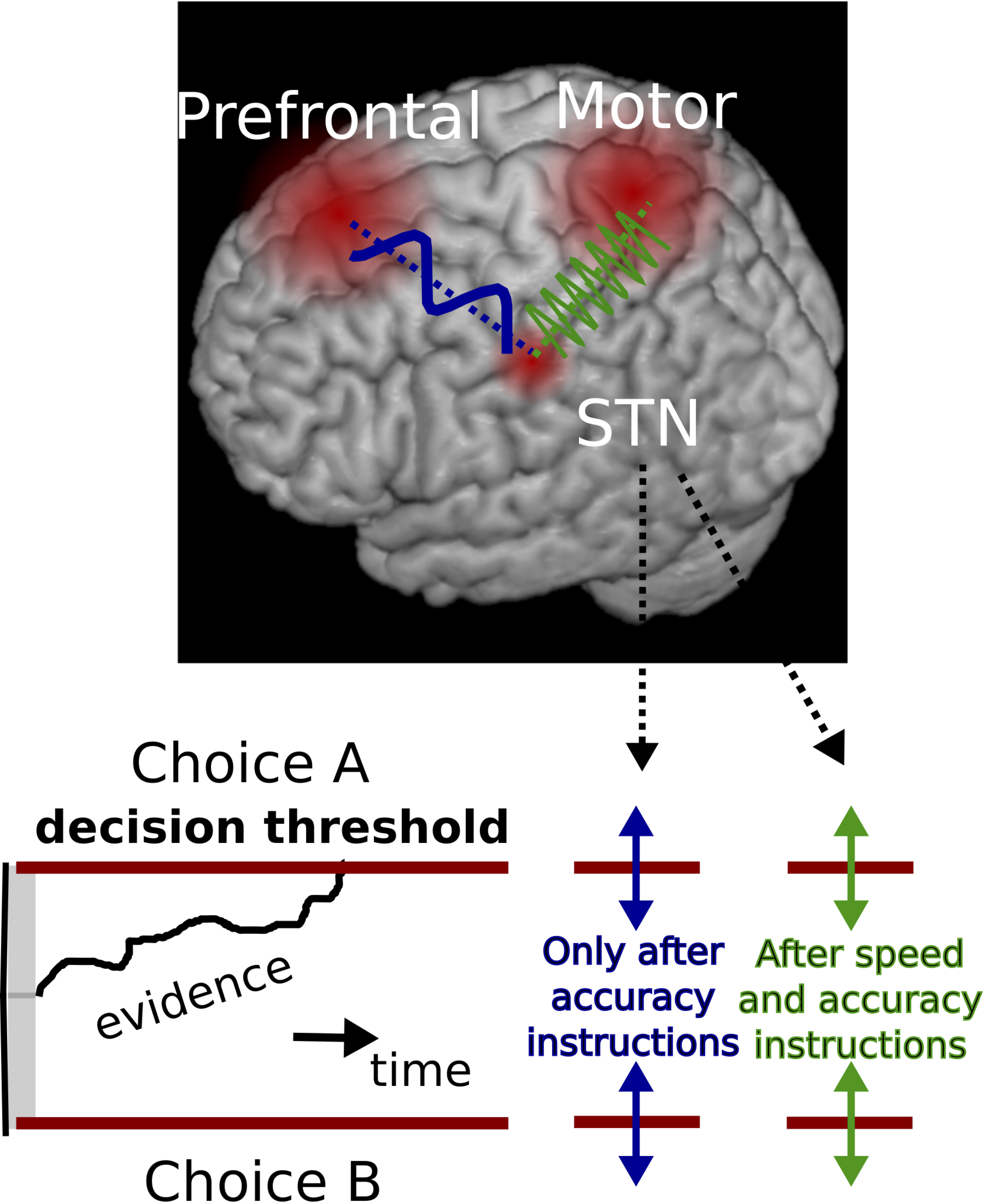 The subthalamic nucleus (STN) switches its interactions with two different cortical circuits (prefrontal cortex in blue, and motor cortex in green) to affect decision-making plans.