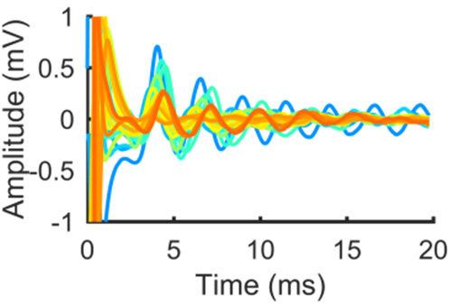 Evoked responses recorded from electrodes in 27 different subthalamic nuclei overlaid (colours represent different nuclei). Note the large and reproducible waveform that is evoked.