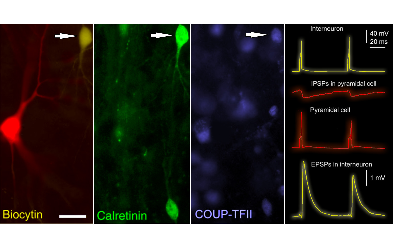 in vitro recorded and labeled human cortical neurons