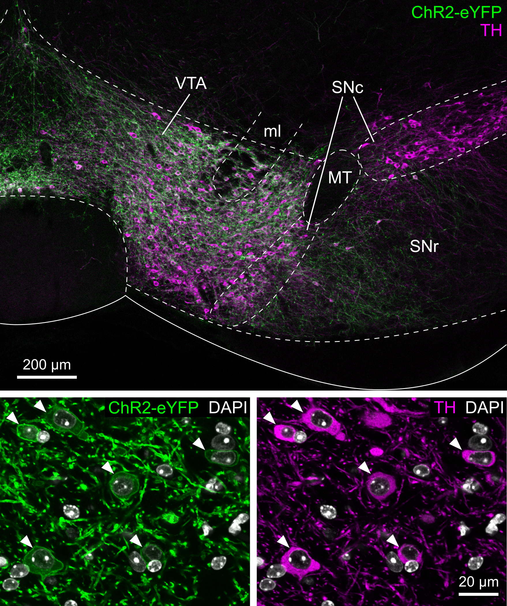 Dopaminergic cells in the Ventral Tegmental Area (VTA)